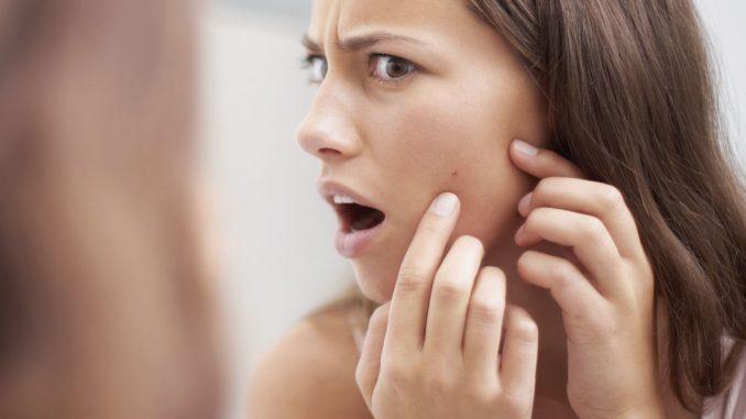 acne skin care canada